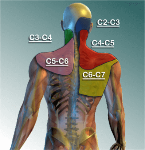 Neck pain or referred pain into shoulder