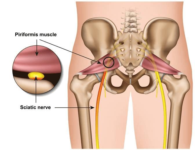 Cause: Piriformis Syndrome