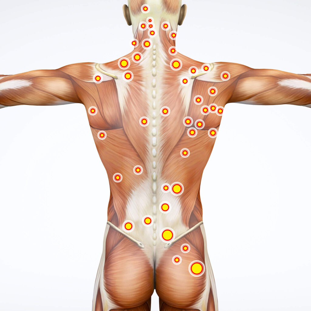 Muscle Trigger Point Pain. Muscle Release Therapy